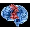 Метастазы головного мозга. Лечение народными средствами