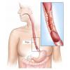 Рак пищевода - лечение народными средствами в домашних условиях