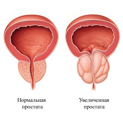 Адамово яблоко от простатита и аденомы простаты