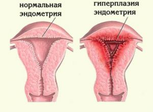 Народное лечение гиперплазии предстательной железы