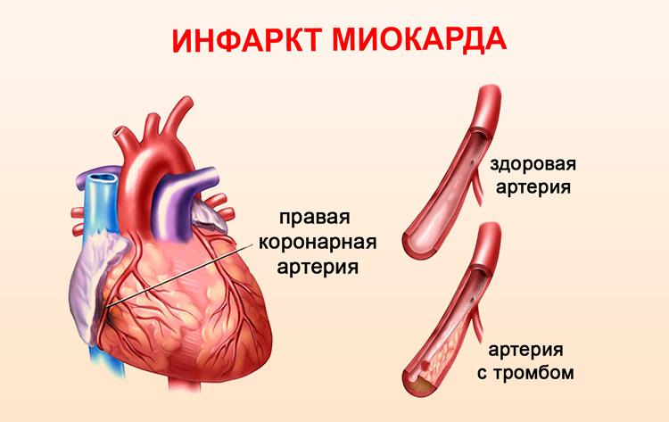 Инфаркт миокарда: причины, симптомы, методы лечения