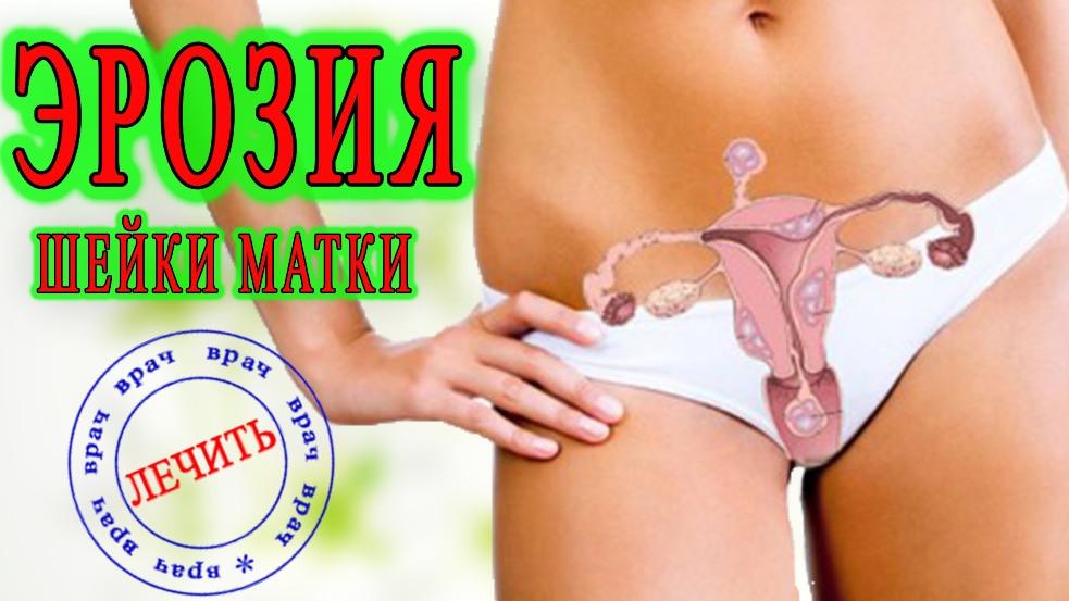 Как лечить эрозию шейки матки в домашних условиях 66