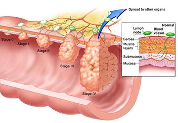 Лечение полипов матки грибом шиитаке