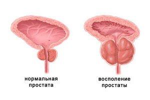 Лечение простатита у мужчин в домашних условиях народными средствами