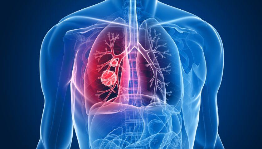 Плоскоклеточный рак легких: развитие, стадии, лечение