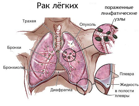 Мелкоклеточный рак легкого, симптомы и выживаемость