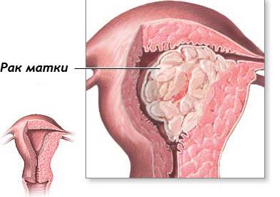 Лечение рака шейки матки 4 стадии с метастазами народными средствами
