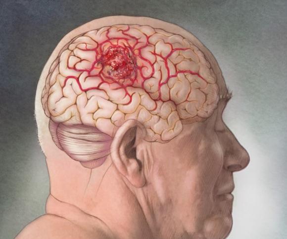 Народные методы лечения опухоли головного мозга