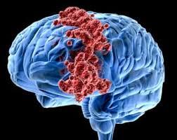 Лечение рака мозга народными средствами