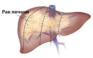 Метастазы в печени: прогноз срока жизни, симптомы, лечение