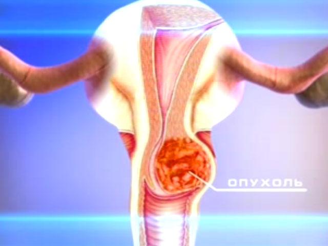 Рак половых губ