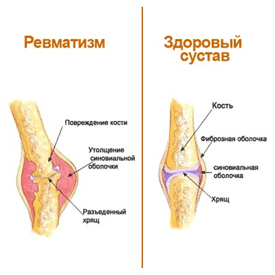 Изображение - Ревматизм суставов лечение народными средствами revmatizm