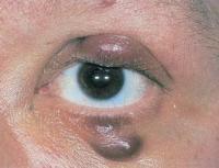 Саркома глаз. Лечение народными средствами